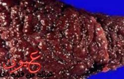 4 أعراض مبكرة تنذر بإصابتك بتليف الكبد