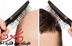 اسباب فشل زراعة الشعر منها قلة العناية بعد العملية