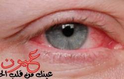 تعرف على أكثر أمراض العيون انتشارا بمصر.. والفرق بين الرمد الحبيبى والربيعى