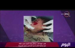"""اليوم - كلب """"ولي أمر"""" ينهش وجه تلميذ بسبب خلاف مع نجلتها إحدى المدارس بمصر الجديدة"""