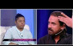 شارع النهار مع حسام المراغى   أمير كرارة يتسبب فى قص شعر الطفل يحيى .. والسبب !