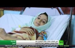حمى الضنك تجتاح مناطق في اليمن