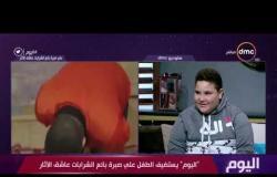 اليوم - الطفل علي صبرة يحكي عن الأسباب التي جعلته يتجه لبيع الشرابات رغم صغر سنه