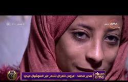 مساء dmc - بسبب التنمر عليها عبر السوشيال ميديا.. عروس يتم فسخ خطوبتها بعد أيام