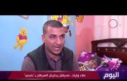 """اليوم - علاء وإياد.. صديقان يحاربان السرطان بـ""""بابجي"""""""