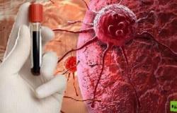 استشر الطبيب فورًا.. كبير أطباء الأورام بروسيا: 4 علامات خطرة