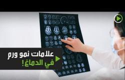 علامات تدل على نمو ورم في الدماغ!