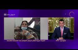 """مساء dmc - الرئيس عبد الفتاح السيسي يوجه بعلاج السيدة """"عزيزة"""" مريضة داء الفيل"""