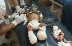 بالفيديو.. الحوثيون يرتكبون مجزرة ضد المدنيين في الدريهمي