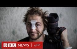 أمير الحلبي: ترك سوريا هربا من العنف ليصاب في مظاهرات بفرنسا