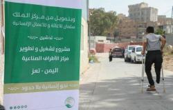 مشروع مركز الأطراف الصناعية في تعز يواصل خِدْماته للمستفيدين