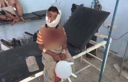 بالفيديو.. إصابة طفل برصاص قناصة ميليشيا الحوثي بالحديدة