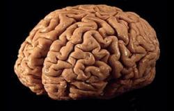 """""""إس آر إس"""" طريقة جديدة لتحليل نسيج الورم الدماغى قبل الجراحة"""
