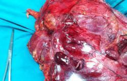 تعرف على أعراض أورام الغشاء السينوفى المبطن