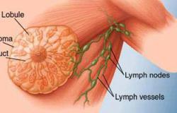 وفاة آلاف النساء تأثرا بسرطان الثدى بسبب العلاج غير المناسب