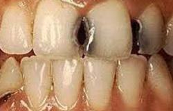السمنة تساهم فى إصابة أسنانك بالتسوس