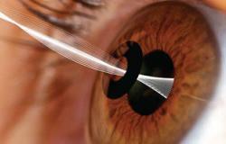 FDA تصدق على أول جهاز يزرع بالعين لعلاج مشاكل الرؤية عن قرب