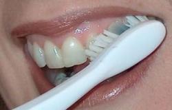 نصائح تخليك تعالج أسنانك وكأنك طبيب.. أهمها استخدام الفراولة والبيكربونات