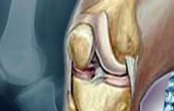 """موقع """"بولد سكاى"""": الزيوت العطرية أفضل علاج لالتهاب المفاصل"""